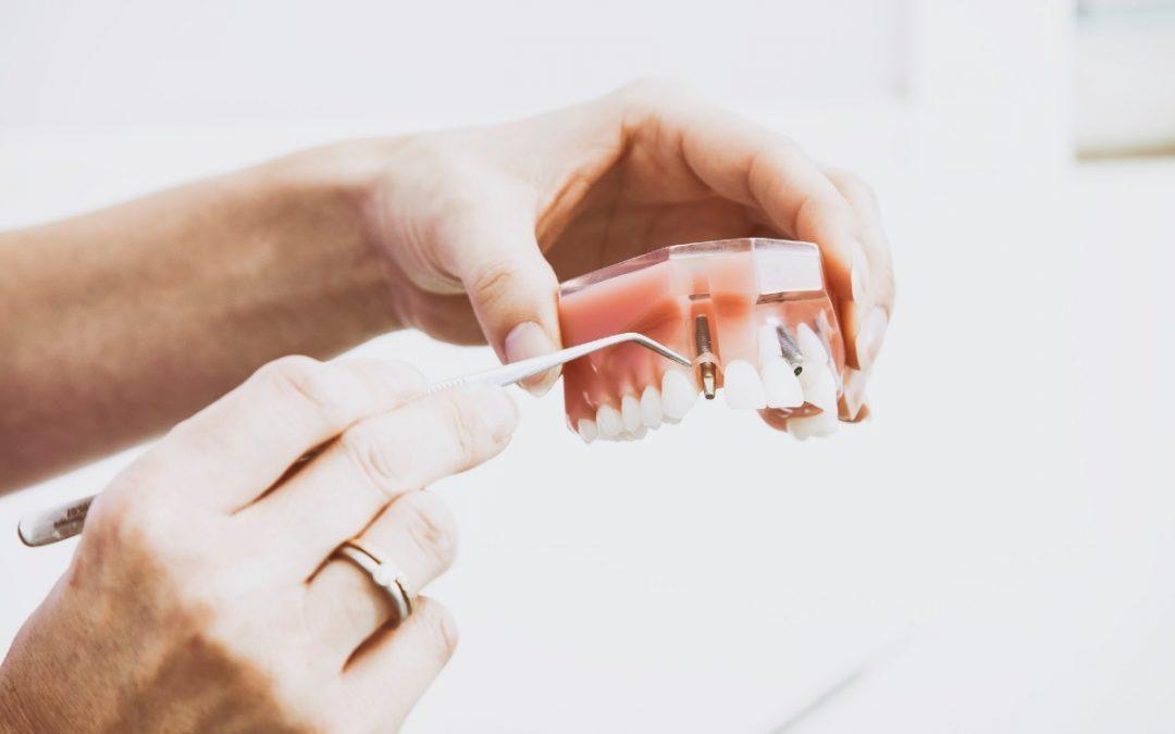 ¿Por qué Koresdent es tu clínica de implantología dental en Sevilla?