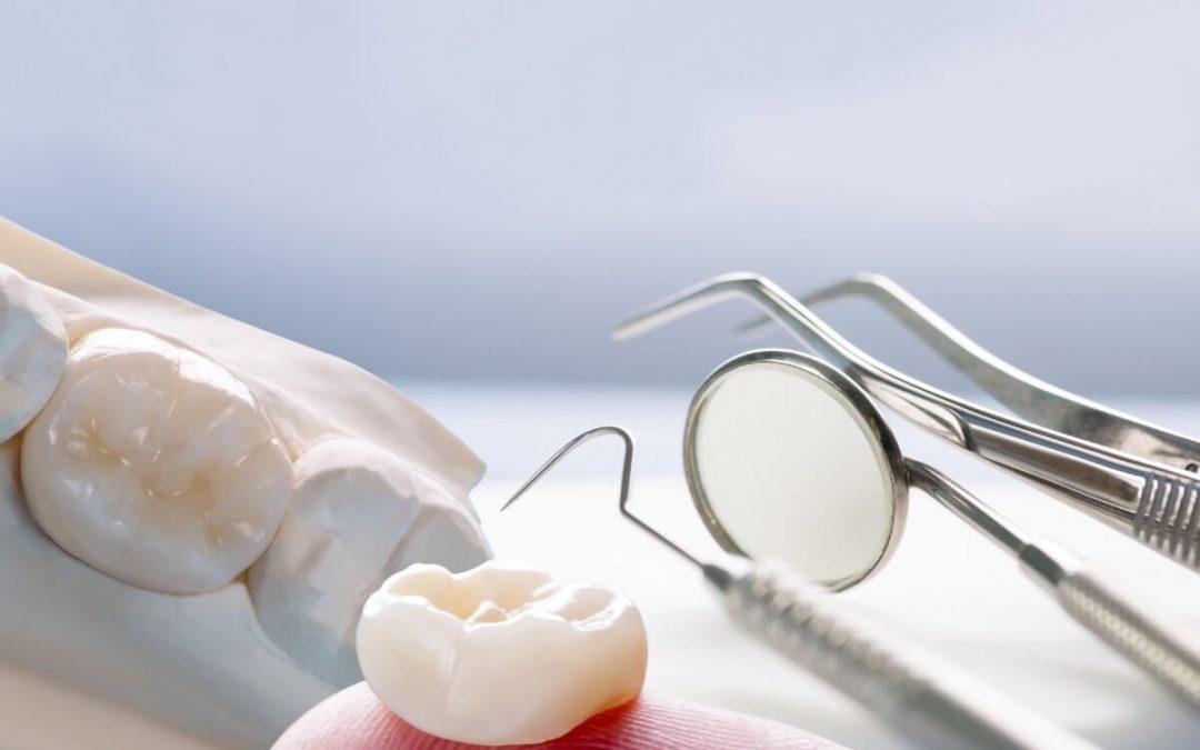 Casos en los que hay que llevar una corona dental