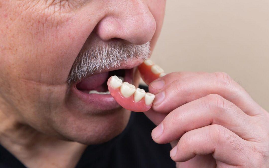 ¿De qué están hechas las prótesis dentales removibles?
