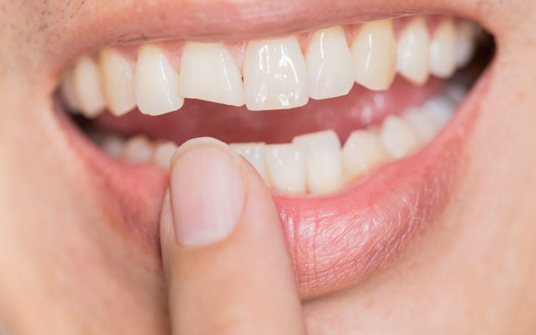 ¿Por qué se agrietan los dientes?